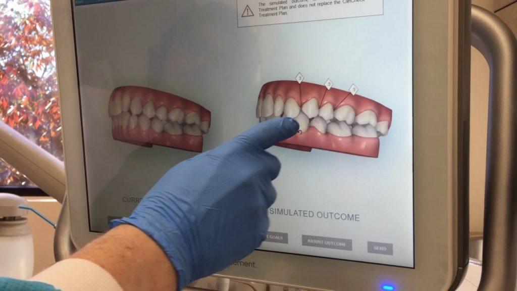 scanner-dental